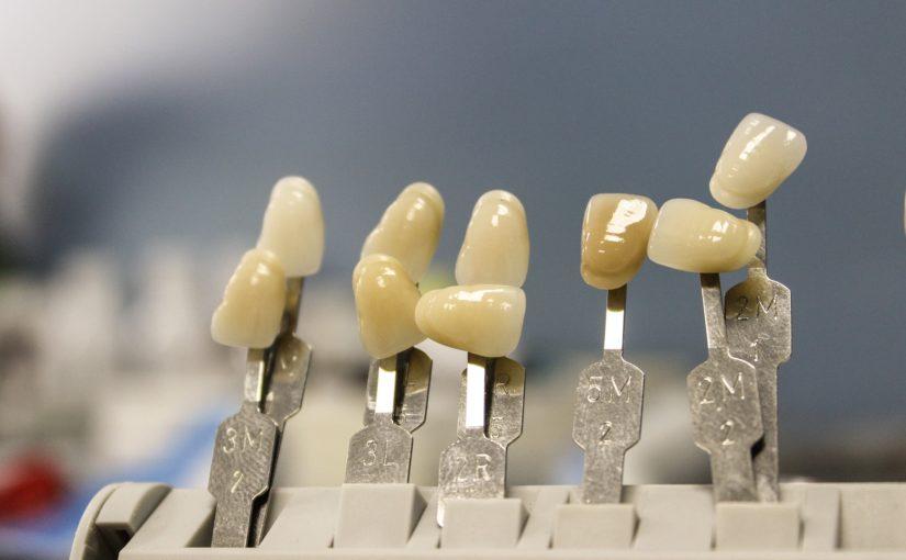 Przepiękne nienaganne zęby również świetny przepiękny uśmiech to powód do zadowolenia.