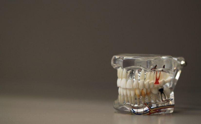 Złe postępowanie odżywiania się to większe deficyty w jamie ustnej a dodatkowo ich zgubę